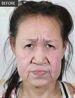 治療を受ける前のシャオ・フェンの顔