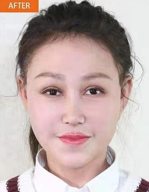 治療後のシャオ・フェンの顔