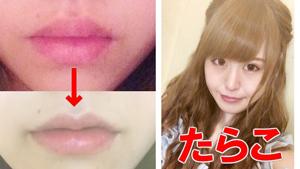轟ちゃんの唇整形のビフォーアフター