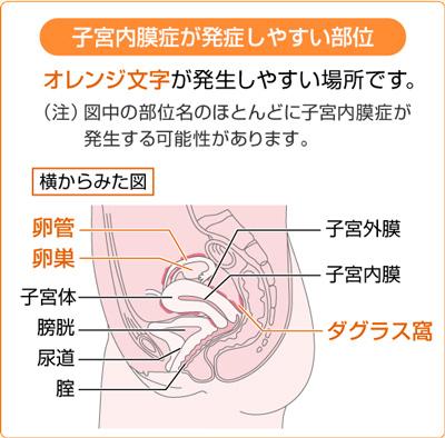 子宮内膜症が発症しやすい部位