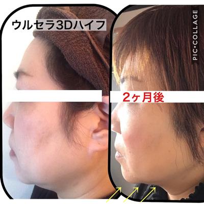 ハイフ施術2か月後の顔の変化